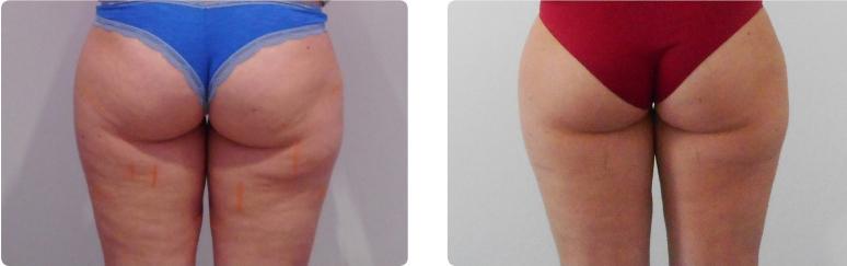Cellulite Onda